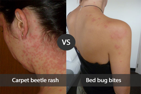 Comparison between bed bug bites and carpet beetle rash