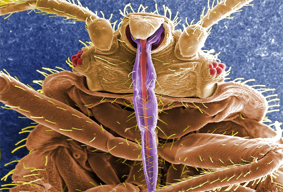 Do bed bugs transmit any diseases?